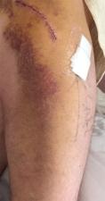 Scar 8 days